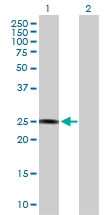 H00002954-B01P - Maleylacetoacetate isomerase / GSTZ1