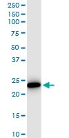 H00002954-D01 - Maleylacetoacetate isomerase / GSTZ1