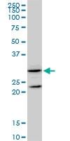H00002954-M01 - Maleylacetoacetate isomerase / GSTZ1