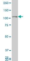 H00002984-M04A - GUCY2C / STA receptor