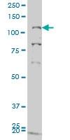 H00002984-M05 - GUCY2C / STA receptor