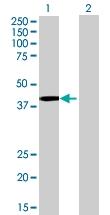 H00002992-B01 - Glycogenin-1 (GYG1)