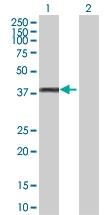 H00002992-D01P - Glycogenin-1 (GYG1)