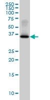 H00002992-M07 - Glycogenin-1 (GYG1)