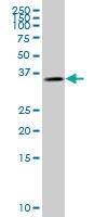 H00002992-M08 - Glycogenin-1 (GYG1)