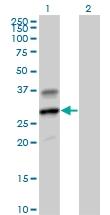 H00002999-B01P - Granzyme H (GZMH)