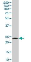 H00002999-B02P - Granzyme H (GZMH)