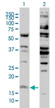 H00003021-M01 - Histone H3F3B