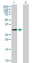 H00003024-B01P - Histone H1.1