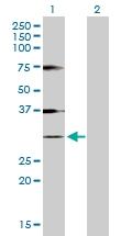 H00003024-D01P - Histone H1.1