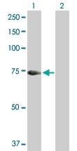 H00003034-B01P - Histidase