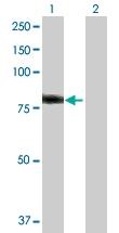 H00003034-D01P - Histidase