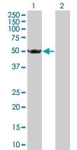 H00003035-B01 - Histidyl-tRNA synthetase / HARS
