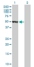 H00003035-B01P - Histidyl-tRNA synthetase / HARS