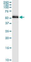H00003035-D01 - Histidyl-tRNA synthetase / HARS