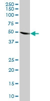H00003035-M03 - Histidyl-tRNA synthetase / HARS
