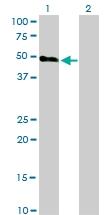 H00003062-M01 - Orexin receptor type 2