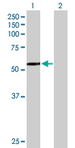 H00003073-B01P - Beta-hexosaminidase alpha / HEXA