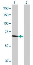H00003073-D01P - Beta-hexosaminidase alpha / HEXA
