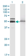H00003073-M06 - Beta-hexosaminidase alpha / HEXA
