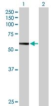 H00003074-B01P - Beta-hexosaminidase beta / HEXB