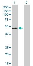 H00003075-D01P - Complement factor H (CFH)