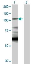 H00003098-D01P - Hexokinase-1