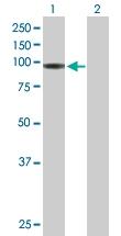 H00003141-B01P - Biotin-protein ligase / HLCS