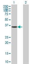 H00003155-D01P - HMG-CoA lyase / HMGCL