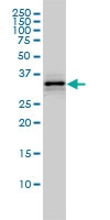 H00003155-M01 - HMG-CoA lyase / HMGCL