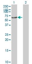 H00003157-B01P - HMG-CoA synthase / HMGCS