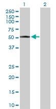 H00003158-D01P - mHMG-CoA synthase / HMGCS2