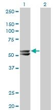 H00003158-M06 - mHMG-CoA synthase / HMGCS2
