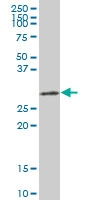 H00003162-B01P - Heme oxygenase 1 / HMOX1