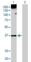 H00003178-D01P - hnRNP core protein A1 / HNRNPA1
