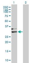 H00003263-B01P - Hemopexin / HPX