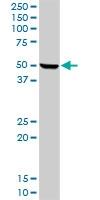 H00003263-D01P - Hemopexin / HPX