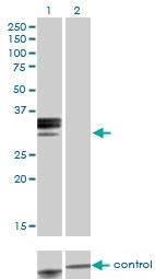 H00003263-M01 - Hemopexin / HPX