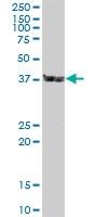 H00003337-B01 - DNAJB1 / HSP40