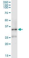 H00003337-D01 - DNAJB1 / HSP40