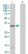H00003354-B01 - Serotonin receptor 1E (HTR1E)
