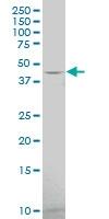 H00003355-A01 - Serotonin receptor 1F (HTR1F)