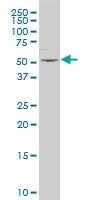 H00003357-A01 - Serotonin receptor 2B (HTR2B)