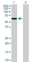 H00003420-D01P - Isocitric dehydrogenase beta / IDH3B