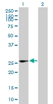 H00003422-B01P - IPP isomerase 1 / IDI1