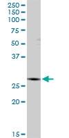 H00003422-D01P - IPP isomerase 1 / IDI1