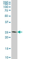 H00003422-M01 - IPP isomerase 1 / IDI1