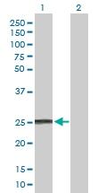 H00003445-D01P - IFNA8 / Interferon alpha-8