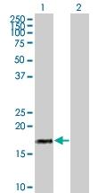H00003451-B01 - IFNA17 / Interferon alpha-17