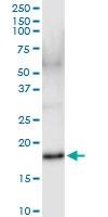 H00003451-D01 - IFNA17 / Interferon alpha-17